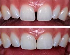 Aralıklı diş kapatılması ile estetik
