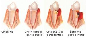 Dişeti Hastalığı