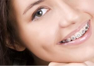 Ortodonti Diş Teli