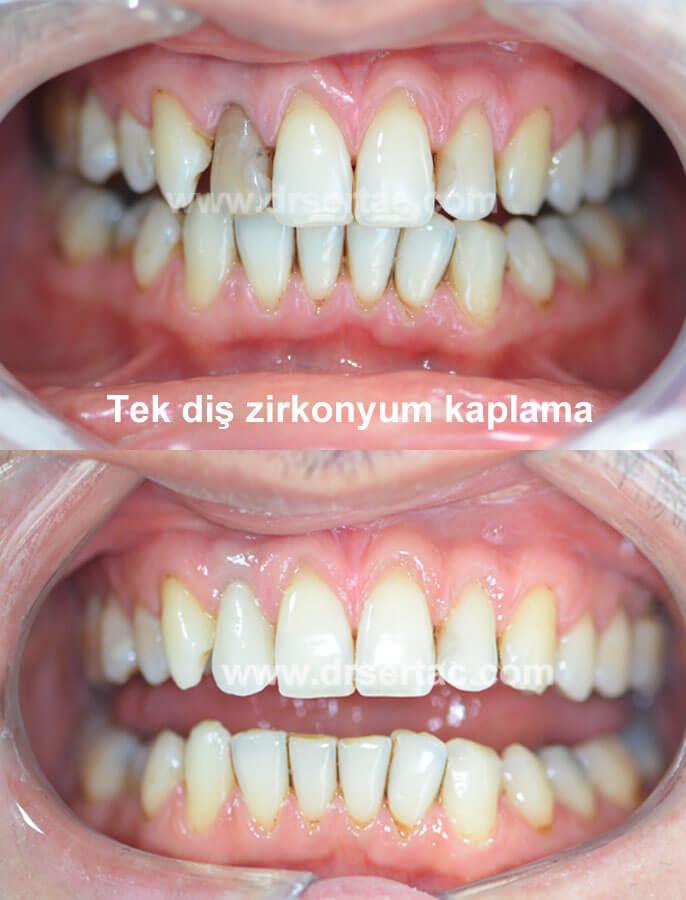 Ön diş estetiği tek diş zirkonyum kaplama