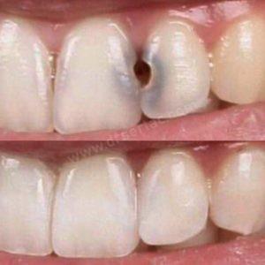 çürük diş dolgu önce sonra