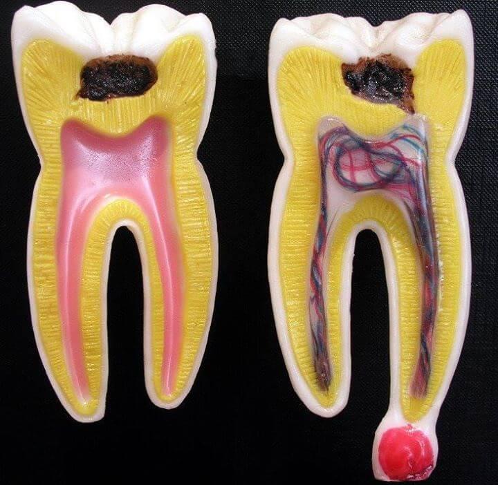 Endodonti Tedavi fiyatı Kanal tedavisi fiyatı