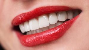 Porslen Diş Kaplama