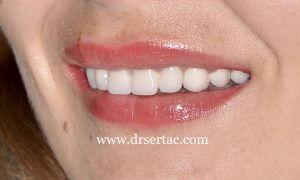 Zirkonyum diş kaplama örnek Diş Hekimi Sertaç Kızılkaya