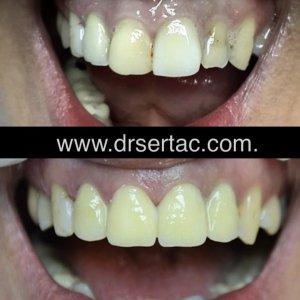 Ön diş estetiği zirkonyum diş kaplama
