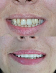 Ön diş estetiği için zirkonyum kaplama önce sonra resim