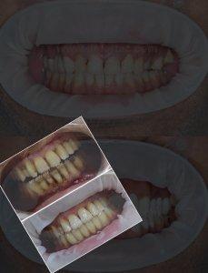 Diş estetiği. Diş Hekimi Sertaç Kızılkaya