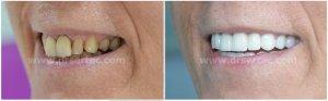 Diş estetiği için zirkonyum diş kaplama örnek önce sonra. Ünlülerin dişleri