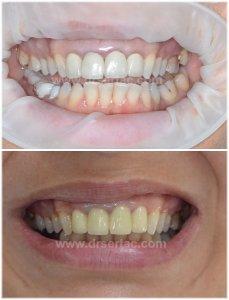 Diş eti kenarı renkleşmesi porselen ile zirkonyum diş kaplama farkı.