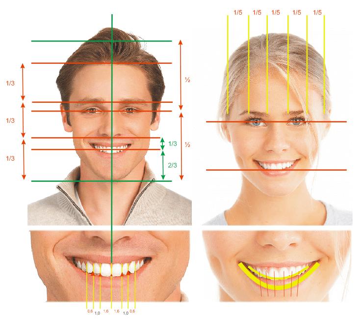 Kaplama diş yapılırken dikkat edilmesi gerekli oranlar.