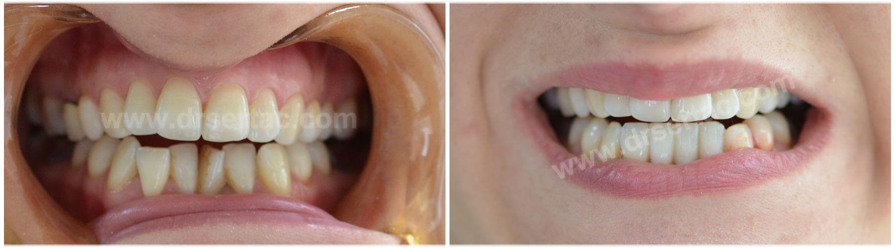 Alt ön diş estetiği için zirkonyum kaplama örnek