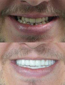 Beyaz diş örnek