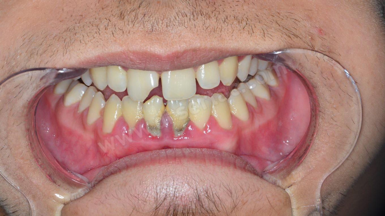 diş taşı periodontoloji diş eti çekilmesi