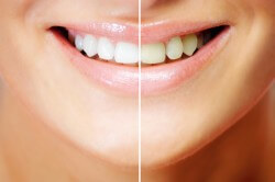 Diş rengi beyazlatma işlemi