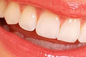 Diş estetiği nasıl yapılır?