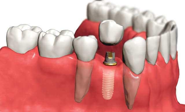 Tek diş implant İstanbul Türkiye