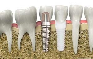 Dişler için en iyi çözüm implant mı?