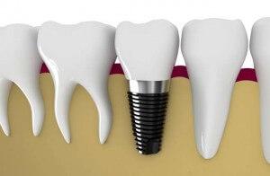 Tel implant