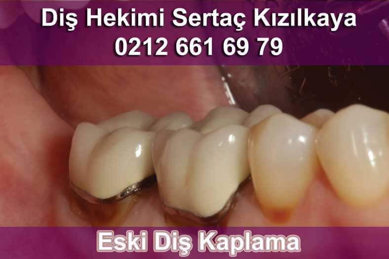 Uzun ömürlü iyi implant ve zirkonyum diş kaplama