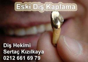 Eski diş kaplama yenilenmesinde zirkonyum diş kaplama ve fiyatı