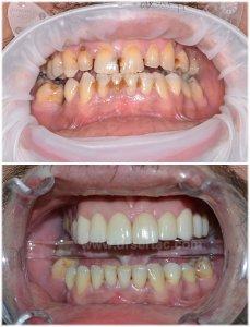 Estetik zirkonyum diş kaplama örneği