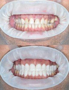 Zirkonyum diş kaplama ile ön diş estetiği