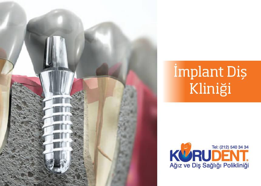 En iyi implant diş kliniği