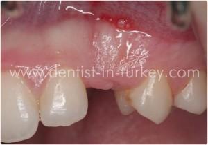 Tek diş eksikliğinde implant yapımı Türkiye İmplant diş kliniği 02126616979