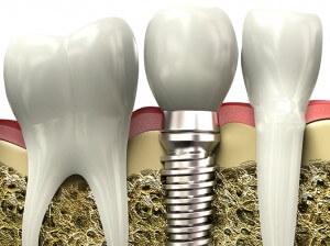 İmplant diş