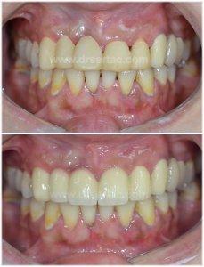 Üst çene estetik diş kaplama zirkonyum diş örneği