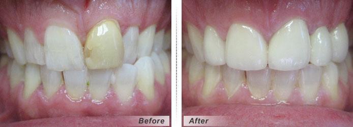 Ön dişlerde estetik