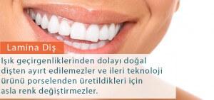 Diş Estetiği ve Lamina fiyatı
