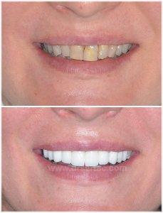 Beyaz diş rengi ile zirkonyum diş kaplama