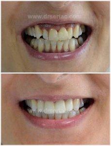 Ön 4 diş zirkonyum kaplama ile diş estetiği