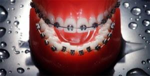 Diş teli ortodonti uzmanı İstanbul