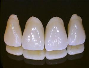 Porselen diş, zirkonyum kaplama ve laminate veneer
