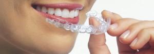 İnvisalign Şeffaf aparey ile yapılan diş plakları hastaya teslim edilir.