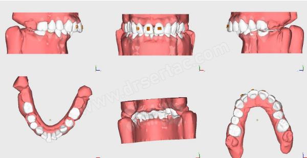 Şeffaf Aparey Ortodonti Tedavisi