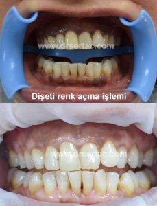 Diş eti rengi açma işlemi