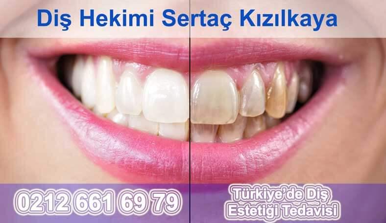 Türkiye diş estetiği