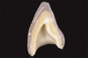 Diş kaplama katmanları
