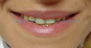 Zirkonyum diş kaplama önce sonra